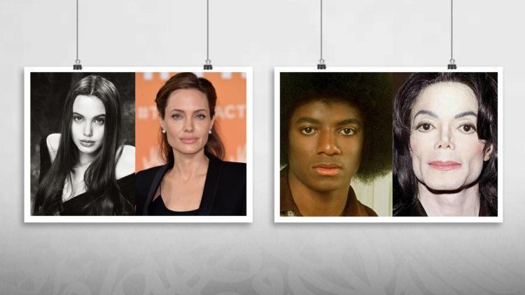 مايكل جاكسون, أنجلينا جولي, عمليات التجميل, تشويه, علم نفس